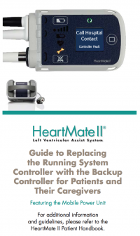 HeartMate II Guide to Replacing Controller_0.png